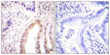 MEF2D Antibody - Immunohistochemistry analysis of paraffin-embedded human lung carcinoma, using MEF2D (Phospho-Ser444) Antibody. The picture on the right is blocked with the phospho peptide.