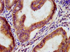 MEGF9 / EGFL5 Antibody - Immunohistochemistry image at a dilution of 1:300 and staining in paraffin-embedded human endometrial cancer performed on a Leica BondTM system. After dewaxing and hydration, antigen retrieval was mediated by high pressure in a citrate buffer (pH 6.0) . Section was blocked with 10% normal goat serum 30min at RT. Then primary antibody (1% BSA) was incubated at 4 °C overnight. The primary is detected by a biotinylated secondary antibody and visualized using an HRP conjugated SP system.