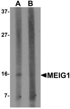 MEIG1 Antibody - Western blot analysis of MEIG in K562 cell lysate with MEIG antibody at 1 ug/ml in (A) the absence and (B) the presence of blocking peptide.