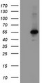 HEK293T cells were transfected with the pCMV6-ENTRY control (Left lane) or pCMV6-ENTRY MEIS3 (Right lane) cDNA for 48 hrs and lysed. Equivalent amounts of cell lysates (5 ug per lane) were separated by SDS-PAGE and immunoblotted with anti-MEIS3.