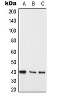 MEK3/6 Antibody - Western blot analysis of MKK3/6 expression in Jurkat (A); A431 (B); PC12 (C) whole cell lysates.