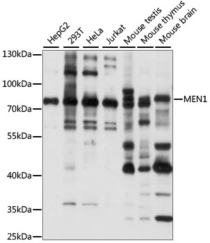 MEN1 / Menin Antibody - Western blot analysis of extracts of various cell lines, using MEN1 antibody at 1:1000 dilution. The secondary antibody used was an HRP Goat Anti-Rabbit IgG (H+L) at 1:10000 dilution. Lysates were loaded 25ug per lane and 3% nonfat dry milk in TBST was used for blocking. An ECL Kit was used for detection and the exposure time was 1s.