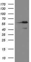 HEK293T cells were transfected with the pCMV6-ENTRY control (Left lane) or pCMV6-ENTRY METAP2 (Right lane) cDNA for 48 hrs and lysed. Equivalent amounts of cell lysates (5 ug per lane) were separated by SDS-PAGE and immunoblotted with anti-METAP2.
