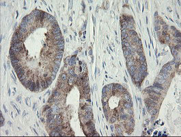 IHC of paraffin-embedded Adenocarcinoma of Human colon tissue using anti-METAP2 mouse monoclonal antibody.