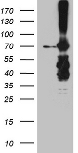 METTL3 Antibody - HEK293T cells were transfected with the pCMV6-ENTRY control. (Left lane) or pCMV6-ENTRY METTL3. (Right lane) cDNA for 48 hrs and lysed. Equivalent amounts of cell lysates. (5 ug per lane) were separated by SDS-PAGE and immunoblotted with anti-METTL3. (1:2000)