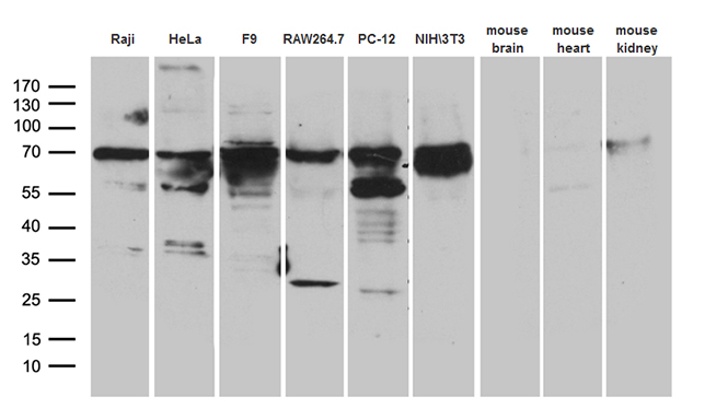 METTL3 Antibody - Western blot analysis of extracts. (35ug) from 6 different cell lines and 3 differenet tissue lysates by using anti-METTL3 monoclonal antibody. (1:500)