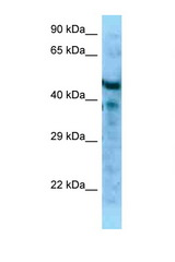 MFAP1 antibody Western blot of Mouse Pancreas lysate. Antibody concentration 1 ug/ml.  This image was taken for the unconjugated form of this product. Other forms have not been tested.