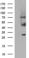 MFAP3 Antibody - HEK293T cells were transfected with the pCMV6-ENTRY control (Left lane) or pCMV6-ENTRY MFAP3 (Right lane) cDNA for 48 hrs and lysed. Equivalent amounts of cell lysates (5 ug per lane) were separated by SDS-PAGE and immunoblotted with anti-MFAP3.
