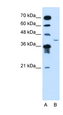 MFAP3L antibody LS-C40486 Western blot of Jurkat lysate.  This image was taken for the unconjugated form of this product. Other forms have not been tested.
