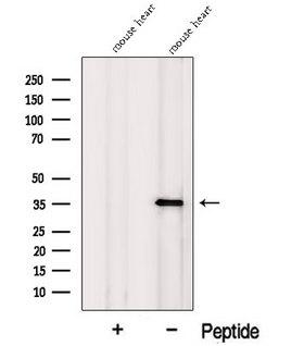 MFAP4 Antibody - Western blot analysis of extracts of mouse heart tissue using MFAP4 antibody. The lane on the left was treated with blocking peptide.