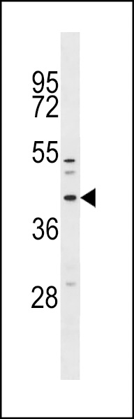 MFF Antibody western blot of NCI-H460 cell line lysates (35 ug/lane). The MFF antibody detected the MFF protein (arrow).