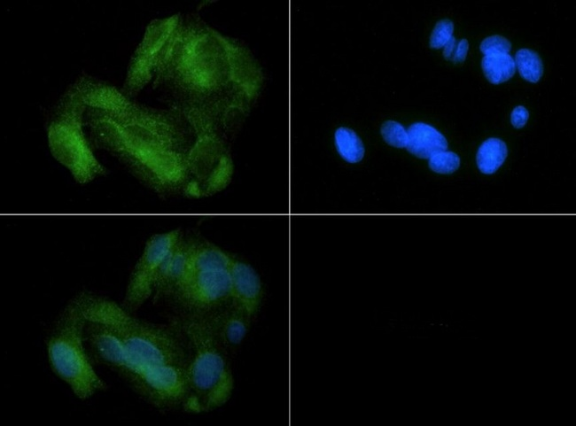 MFN1 Antibody - Immunocytochemistry/Immunofluorescence: Mitofusin-1 Antibody - MITO1 antibody was tested at 1:100 in HepG2 cells with FITC (green). Nuclei (Blue) were counterstained with Dapi (blue).  This image was taken for the unconjugated form of this product. Other forms have not been tested.