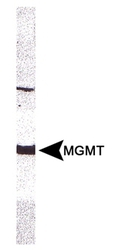 MGMT Antibody - MGMT antibody (MT 23.2) - Detection of MGMT in CEM whole cell extract using MGMT Antibody MGMT antibody at 1:100 dilution.