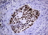 Immunohistochemical staining of paraffin-embedded Carcinoma of Human lung tissue using anti-MGMT mouse monoclonal antibody.  heat-induced epitope retrieval by 10mM citric buffer, pH6.0, 120C for 3min)