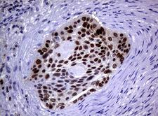 MGMT Antibody - Immunohistochemical staining of paraffin-embedded Carcinoma of Human lung tissue using anti-MGMT mouse monoclonal antibody.  heat-induced epitope retrieval by 10mM citric buffer, pH6.0, 120C for 3min)