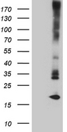 MGP / Matrix Gla-Protein Antibody - HEK293T cells were transfected with the pCMV6-ENTRY control. (Left lane) or pCMV6-ENTRY MGP. (Right lane) cDNA for 48 hrs and lysed. Equivalent amounts of cell lysates. (5 ug per lane) were separated by SDS-PAGE and immunoblotted with anti-MGP. (1:2000)