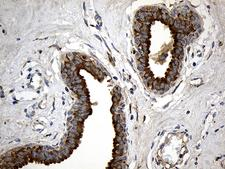 MGP / Matrix Gla-Protein Antibody - Immunohistochemical staining of paraffin-embedded Human breast tissue within the normal limits using anti-MGP mouse monoclonal antibody. (Heat-induced epitope retrieval by 1mM EDTA in 10mM Tris buffer. (pH8.5) at 120°C for 3 min. (1:500)