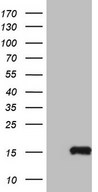 MGP / Matrix Gla-Protein Antibody - HEK293T cells were transfected with the pCMV6-ENTRY control (Left lane) or pCMV6-ENTRY MGP (Right lane) cDNA for 48 hrs and lysed. Equivalent amounts of cell lysates (5 ug per lane) were separated by SDS-PAGE and immunoblotted with anti-MGP.