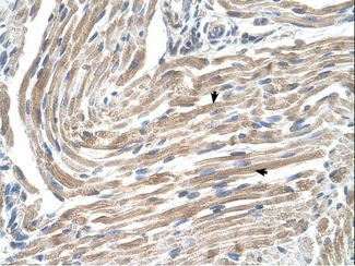 MGST2 antibody LS-C80706 was used in IHC to stain formalin-fixed, paraffin-embedded human muscle.  This image was taken for the unconjugated form of this product. Other forms have not been tested.