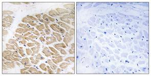 IHC of paraffin-embedded human heart tissue, using MIA Antibody. The picture on the right is treated with the synthesized peptide.