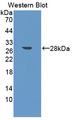 Western blot of MID1 antibody using the recombinant protein that is the immunogen.