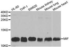 MIF Antibody - Western blot analysis of extracts of various cell lines, using MIF antibody at 1:1000 dilution. The secondary antibody used was an HRP Goat Anti-Rabbit IgG (H+L) at 1:10000 dilution. Lysates were loaded 25ug per lane and 3% nonfat dry milk in TBST was used for blocking.