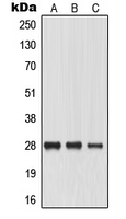 Western blot analysis of Aquaporin 0 expression in HeLa (A); SP2/0 (B); PC12 (C) whole cell lysates.