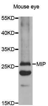 Western blot analysis of extracts of mouse eyes tissue lysate.