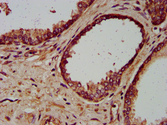Immunohistochemistry image at a dilution of 1:200 and staining in paraffin-embedded human prostate cancer performed on a Leica BondTM system. After dewaxing and hydration, antigen retrieval was mediated by high pressure in a citrate buffer (pH 6.0) . Section was blocked with 10% normal goat serum 30min at RT. Then primary antibody (1% BSA) was incubated at 4 °C overnight. The primary is detected by a biotinylated secondary antibody and visualized using an HRP conjugated SP system.
