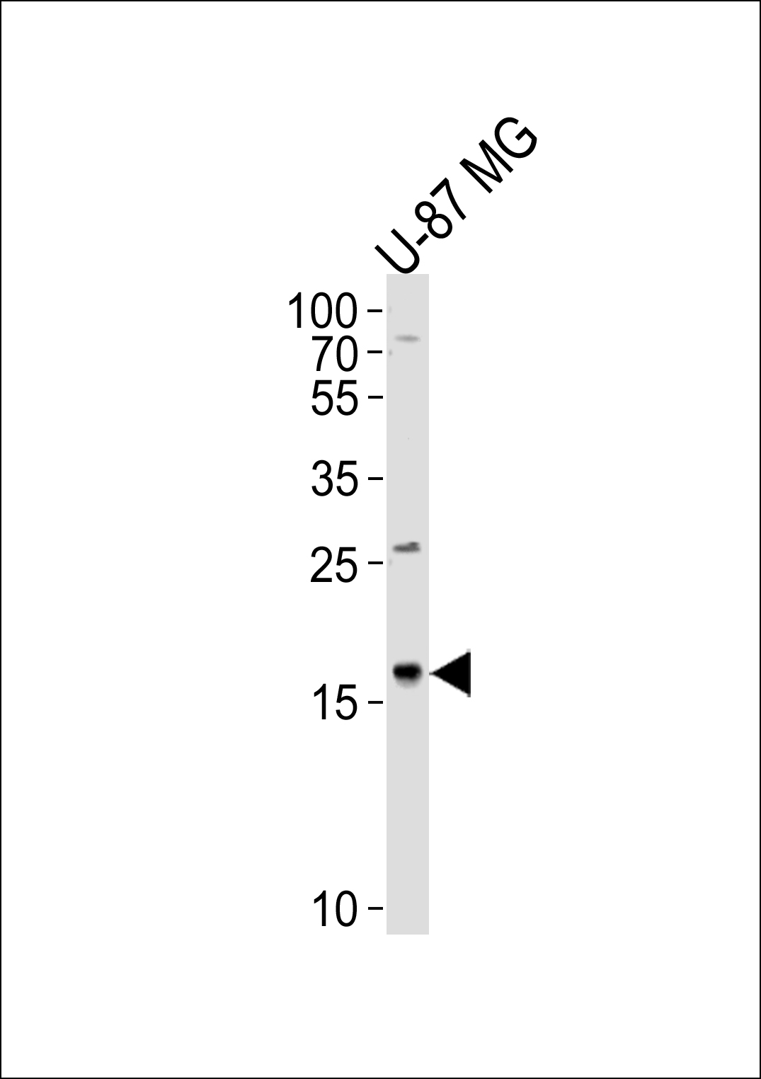 Western blot of lysate from U-87 MG cell line, using CXCL2 Antibody. Antibody was diluted at 1:1000 at each lane. A goat anti-rabbit IgG H&L (HRP) at 1:5000 dilution was used as the secondary antibody. Lysate at 35ug per lane.
