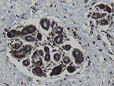 MIPEP Antibody - IHC of paraffin-embedded Human breast tissue using anti-MIPEP mouse monoclonal antibody.