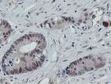 IHC of paraffin-embedded Adenocarcinoma of Human colon tissue using anti-MIPEP mouse monoclonal antibody.
