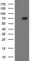HEK293T cells were transfected with the pCMV6-ENTRY control (Left lane) or pCMV6-ENTRY MIPEP (Right lane) cDNA for 48 hrs and lysed. Equivalent amounts of cell lysates (5 ug per lane) were separated by SDS-PAGE and immunoblotted with anti-MIPEP.