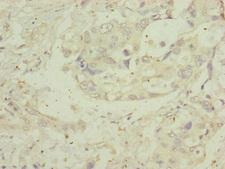 MIPEP Antibody - Immunohistochemistry of paraffin-embedded human pancreatic cancer at dilution of 1:100