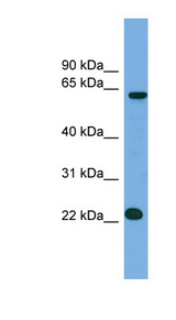 MIS18A / C21orf45 antibody Western blot of NCI-H226 cell lysate. This image was taken for the unconjugated form of this product. Other forms have not been tested.