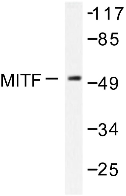 Western blot of MITF (G174) pAb in extracts from COS7 cells.