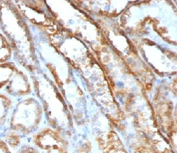 Mitochondria Antibody - IHC testing of FFPE human renal cell carcinoma with Mitochondrial antibody