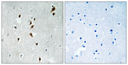 Immunohistochemistry analysis of paraffin-embedded human brain, using Mnk1 (Phospho-Thr385) Antibody. The picture on the right is blocked with the phospho peptide.