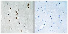 MKNK1 / MNK1 Antibody - Immunohistochemistry analysis of paraffin-embedded human brain, using Mnk1 (Phospho-Thr385) Antibody. The picture on the right is blocked with the phospho peptide.