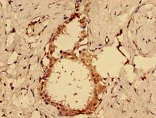 MKRN2 Antibody - Immunohistochemistry image of paraffin-embedded human ovarian cancer at a dilution of 1:100