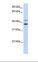 MKRN2 Antibody - Hela cell lysate. Antibody concentration: 1.0 ug/ml. Gel concentration: 12%.  This image was taken for the unconjugated form of this product. Other forms have not been tested.