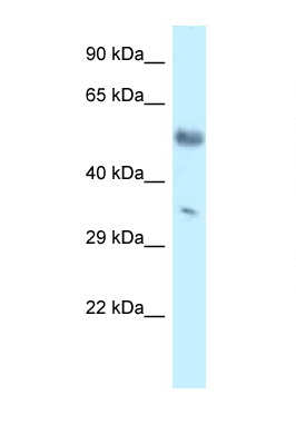 MKX antibody LS-C145596 Western blot of Mouse Brain lysate. Antibody concentration 1 ug/ml.  This image was taken for the unconjugated form of this product. Other forms have not been tested.