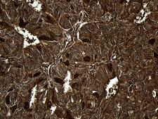 MLC3F / MYL1 Antibody - Immunohistochemical staining of paraffin-embedded Adenocarcinoma of Human endometrium tissue using anti-MYL1 mouse monoclonal antibody. (Heat-induced epitope retrieval by 1mM EDTA in 10mM Tris buffer. (pH8.5) at 120°C for 3 min. (1:2000)