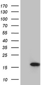 MLC3F / MYL1 Antibody - HEK293T cells were transfected with the pCMV6-ENTRY control. (Left lane) or pCMV6-ENTRY MYL1. (Right lane) cDNA for 48 hrs and lysed. Equivalent amounts of cell lysates. (5 ug per lane) were separated by SDS-PAGE and immunoblotted with anti-MYL1. (1:2000)