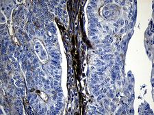 MLC3F / MYL1 Antibody - Immunohistochemical staining of paraffin-embedded Adenocarcinoma of Human endometrium tissue using anti-MYL1 mouse monoclonal antibody. (Heat-induced epitope retrieval by 1mM EDTA in 10mM Tris buffer. (pH8.5) at 120°C for 3 min. (1:500)