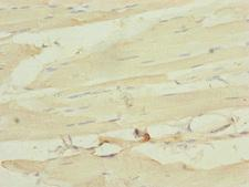 MLC3F / MYL1 Antibody - Immunohistochemistry of paraffin-embedded human skeletal muscle tissue at dilution of 1:100