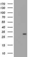 HEK293T cells were transfected with the pCMV6-ENTRY control (Left lane) or pCMV6-ENTRY MLF1 (Right lane) cDNA for 48 hrs and lysed. Equivalent amounts of cell lysates (5 ug per lane) were separated by SDS-PAGE and immunoblotted with anti-MLF1.