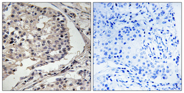 MLK1+2 Antibody - Immunohistochemistry analysis of paraffin-embedded human breast carcinoma tissue, using MLK1/2 Antibody. The picture on the right is blocked with the synthesized peptide.