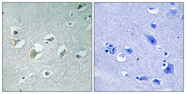 MLK1+2 Antibody - Immunohistochemistry analysis of paraffin-embedded human brain, using MLK1/2 (Phospho-Thr312/266) Antibody. The picture on the right is blocked with the phospho peptide.