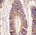 Formalin-fixed and paraffin-embedded human colon carcinoma tissue reacted with MLK4 antibody , which was peroxidase-conjugated to the secondary antibody, followed by DAB staining. This data demonstrates the use of this antibody for immunohistochemistry; clinical relevance has not been evaluated.